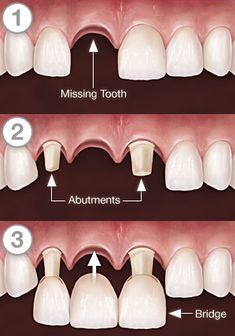 Steps for Dental Bridge Treatment