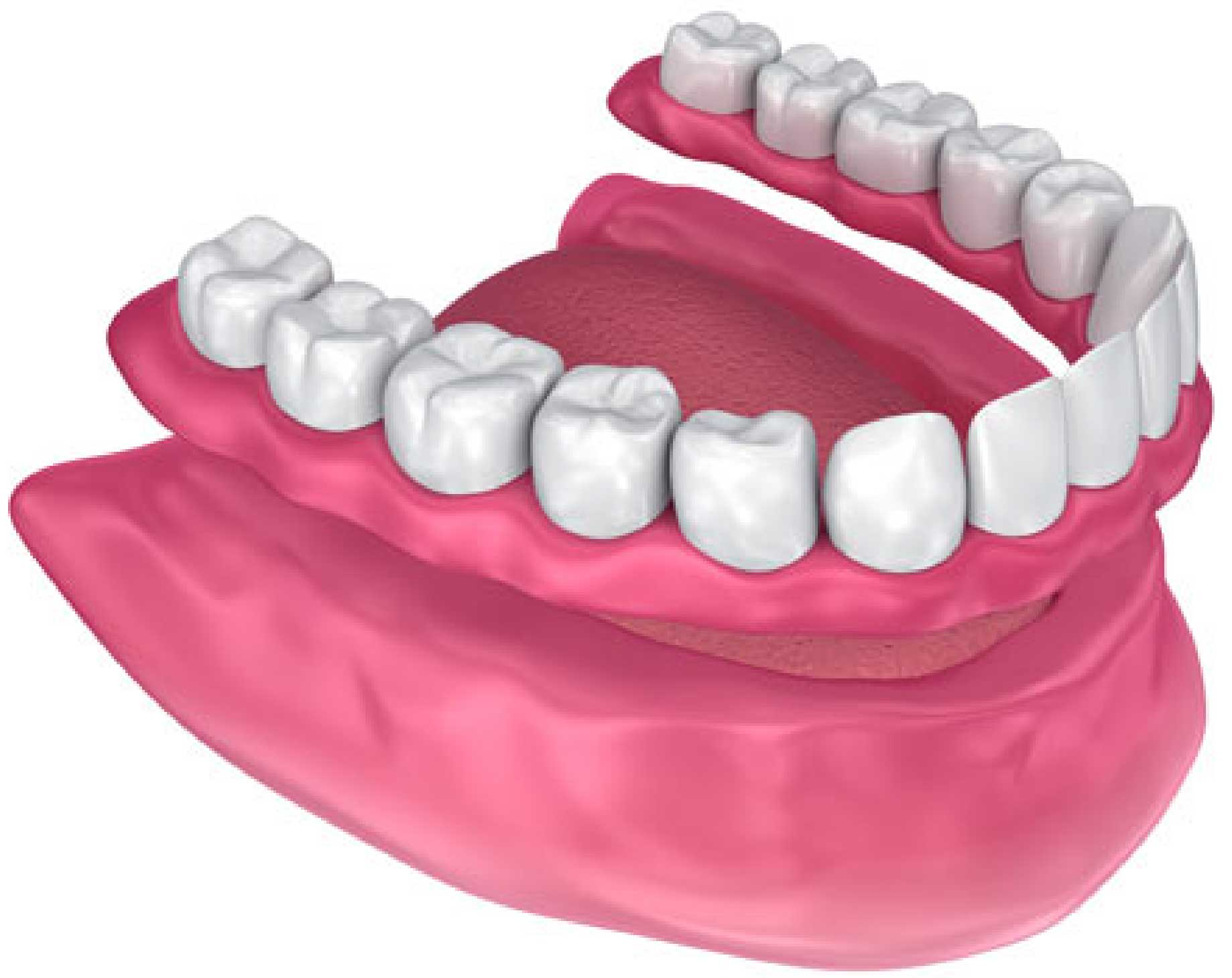 Model of Complete Denture