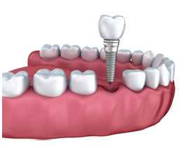 Implant and Crown Image