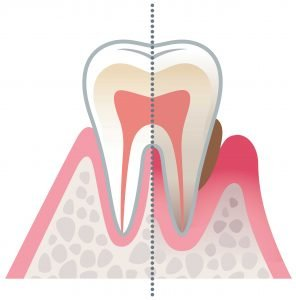 Diagram image of Gum Disease