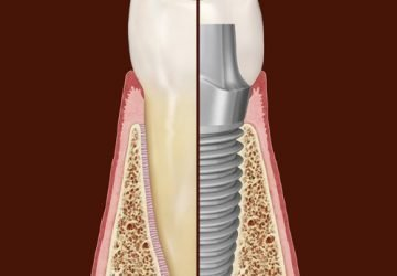 Dental Implant Compared to Natural Tooth