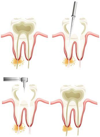 Image of Root Canal and Crown Prep