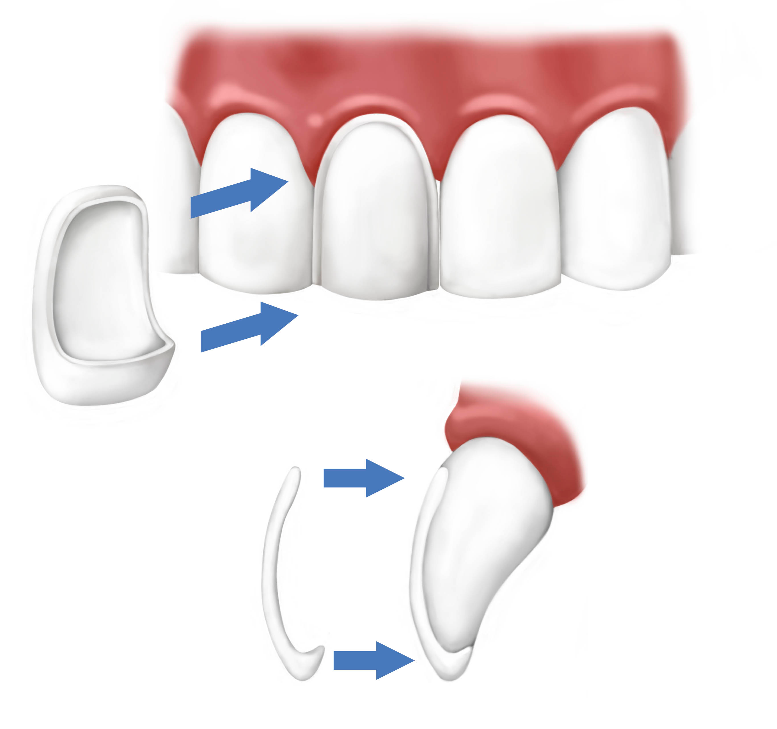Model of Dental Veneers